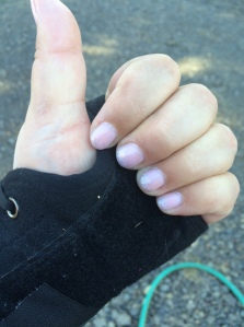showing off my wedding fingers (and splint)